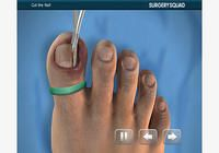 Ingrown Toenail Removal iOS pour mac