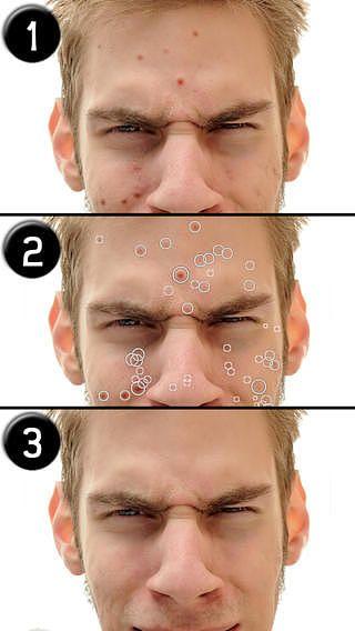 Effaceur d'imperfections (Pimple Eraser) pour mac
